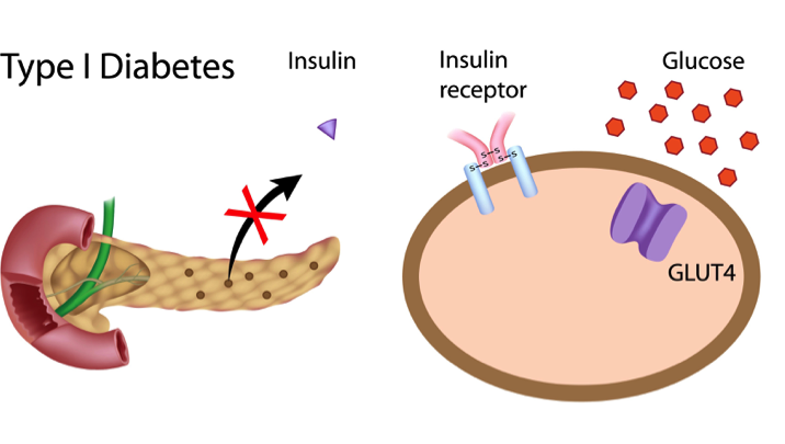 Illustration showing Insulin action in diabetes type 1.