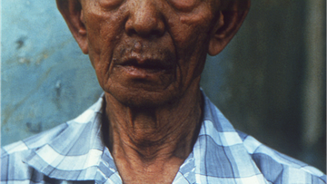 The man depicted here was ill with lepromatous leprosy, caused by the bacterium, Mycobacterium leprae.