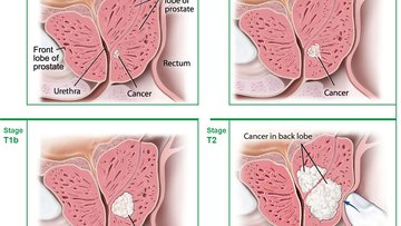 Stages of Early Prostate Cancer. Illustration of early prostate cancer tumors in the prostate. T1 means that the cancer is so small it can't be felt during a DRE. T1a and T1b cancer is most often found by accident.