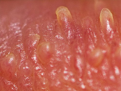 early penile papules