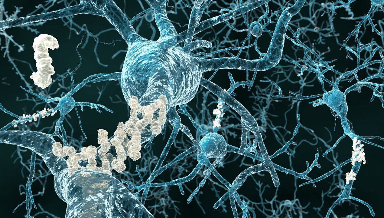 Illustration showing neurons with amyloid plaques in Alzheimer's disease.