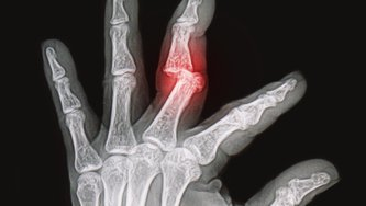X-rays image of wrist and hand shows fracture and dislocation bone finger bone