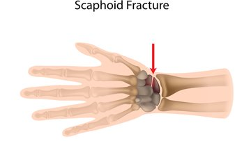 Illustration of Scaphoid Fracture of the Wrist.