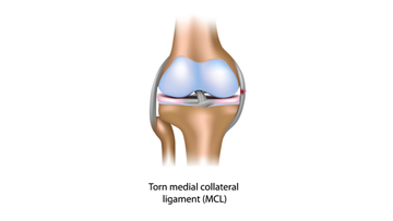 Knee sprain due to  torn medial collateral ligaments.