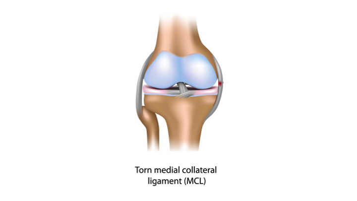 medial collateral ligament mcl injury