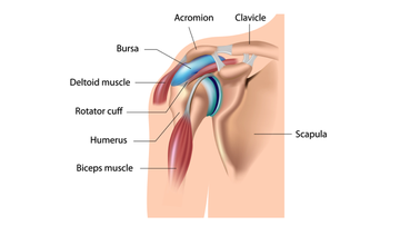 Illustration of Shoulder bursa, and bursitis.
