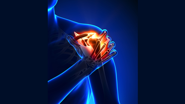 Illustration showing Shoulder pain.