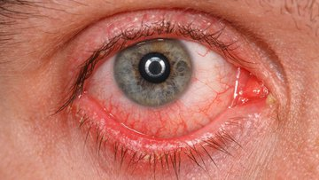 Chronic conjunctivitis eye with a red iris and pus.