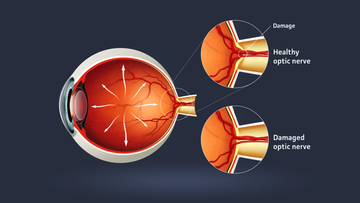 Human eye - glaucoma (eye disease).
