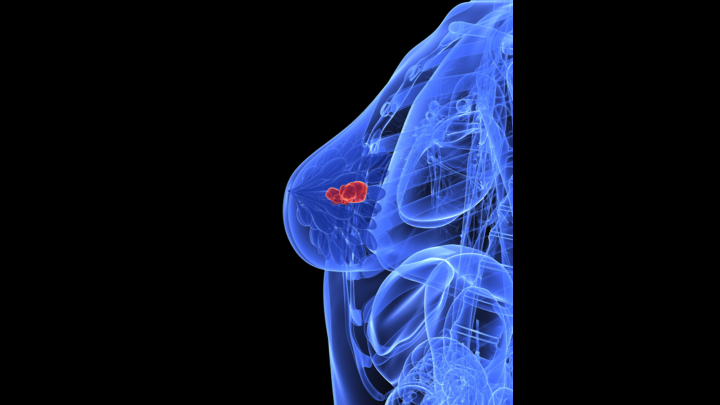Illustration showing image of a breast mass representing breast cancer.