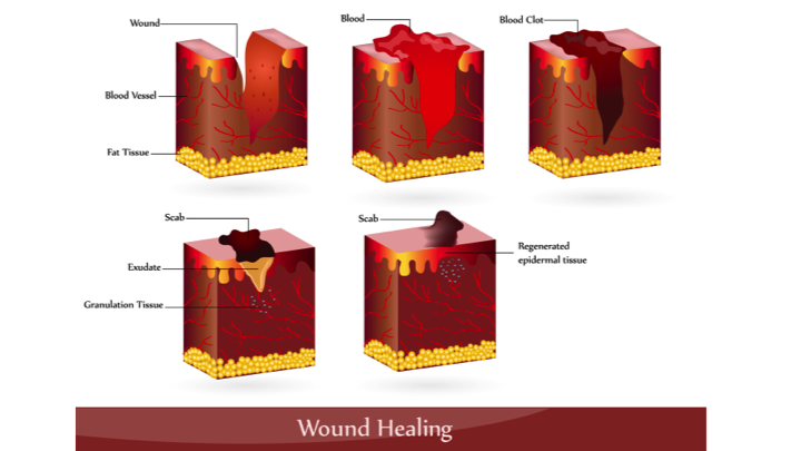 first aid for puncture wounds