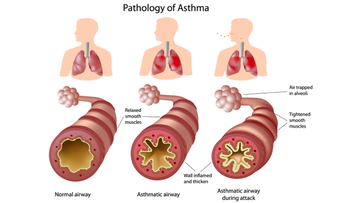 Illustration showing labelled airways of normal, asthmatic airways in individual with long standing asthma and airways during an asthma attack.
