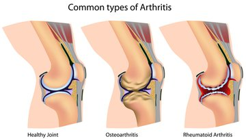 Common types of arthritis of knee