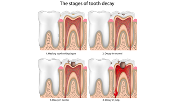 The Stages of Tooth Decay.