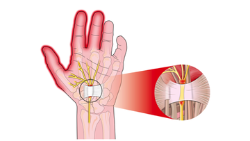 Illustration showing the carpel tunnel syndrome with the transverse carpal ligament compressing the median nerve.