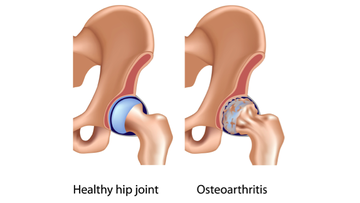 Osteoarthritis of the hip joint.