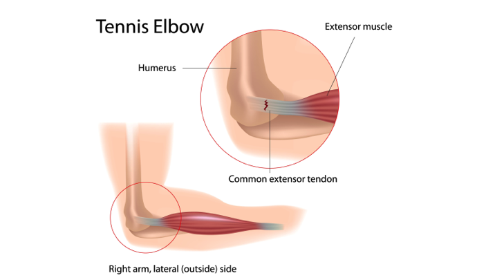 Tennis elbow - tear in the common extensor tendon of the arm.