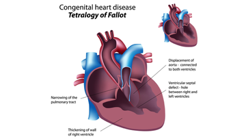 Congenital heart disease: Tetralogy of Fallot.