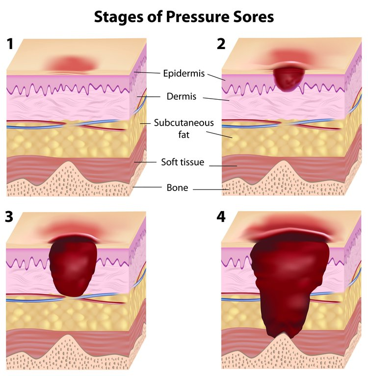 reflection on pressure sore care A pressure sore is an area of the skin that breaks down when something keeps rubbing or pressing against the skin causes pressure sores occur when there is too much pressure on the skin for too long.