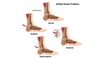 Illustration showing Achilles tendon problems including tendinosis, tendinitis, tendon tear and tendon rupture.