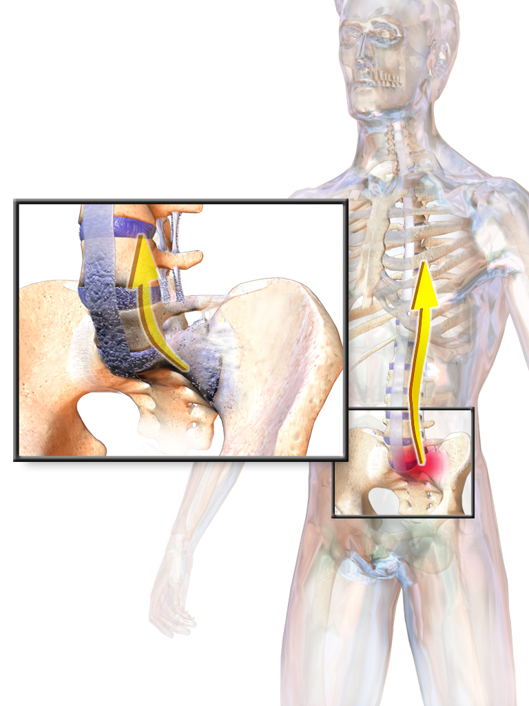 Watch What to Do When Ankylosing Spondylitis Gets You Down video