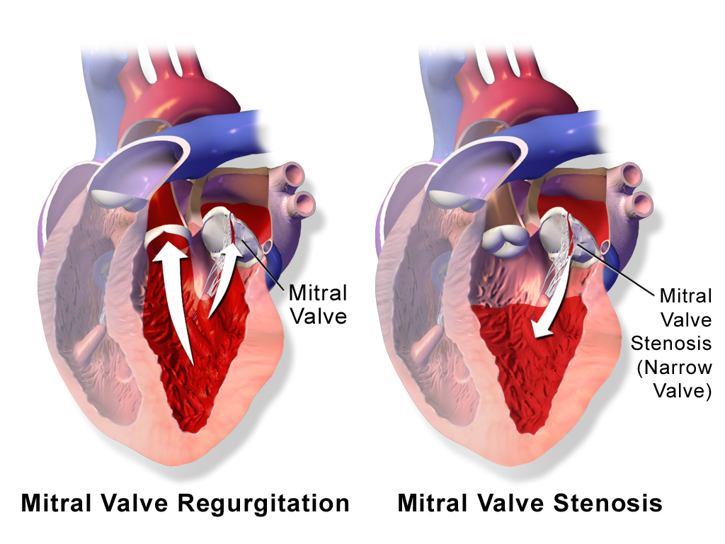 Watch How to Recognize a Leaking Heart Valve video
