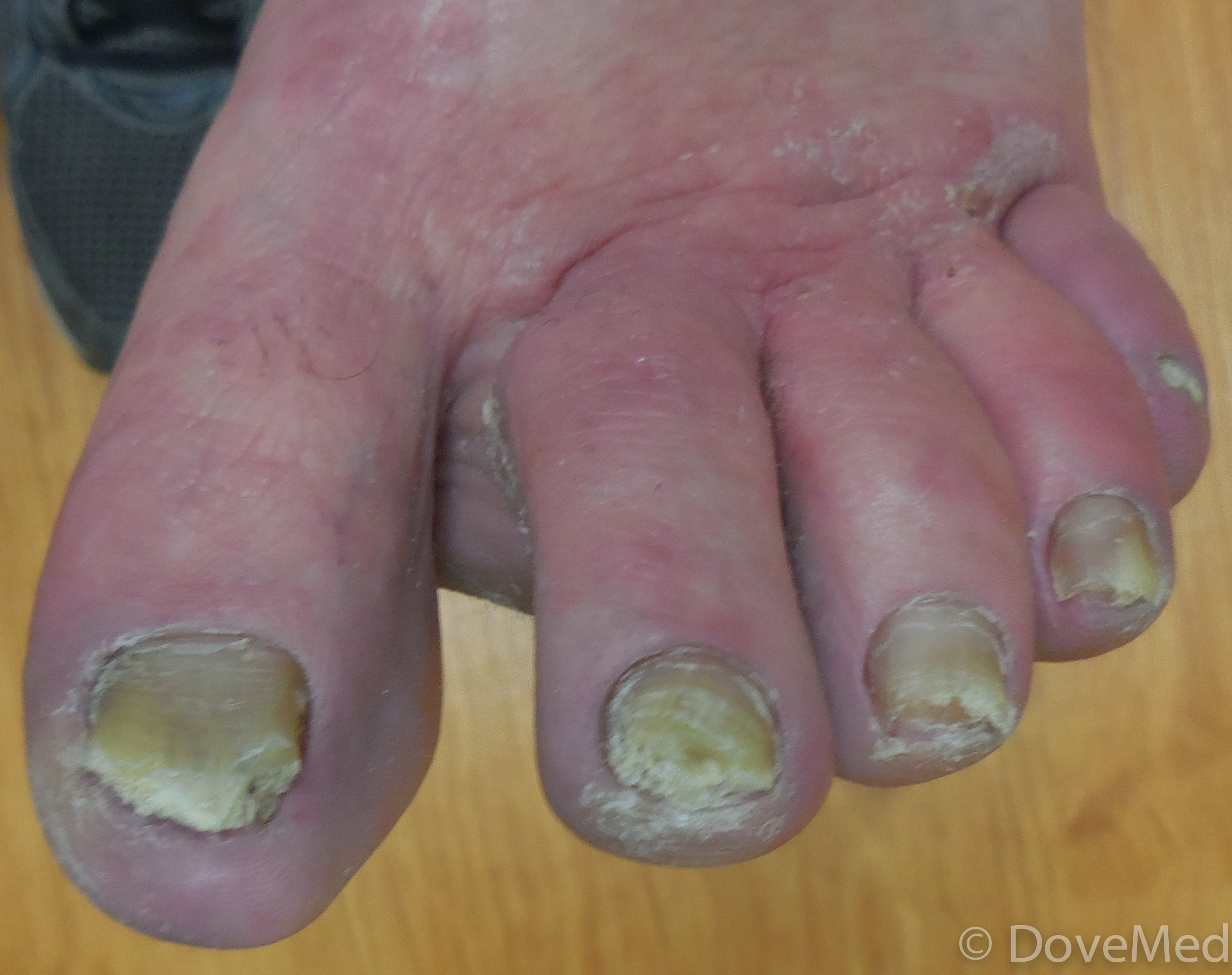 Fungal Infection Of Nail