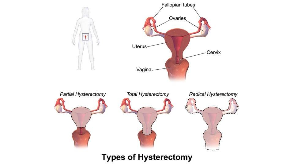 Swollen abdomen post hysterectomy sexual dysfunction