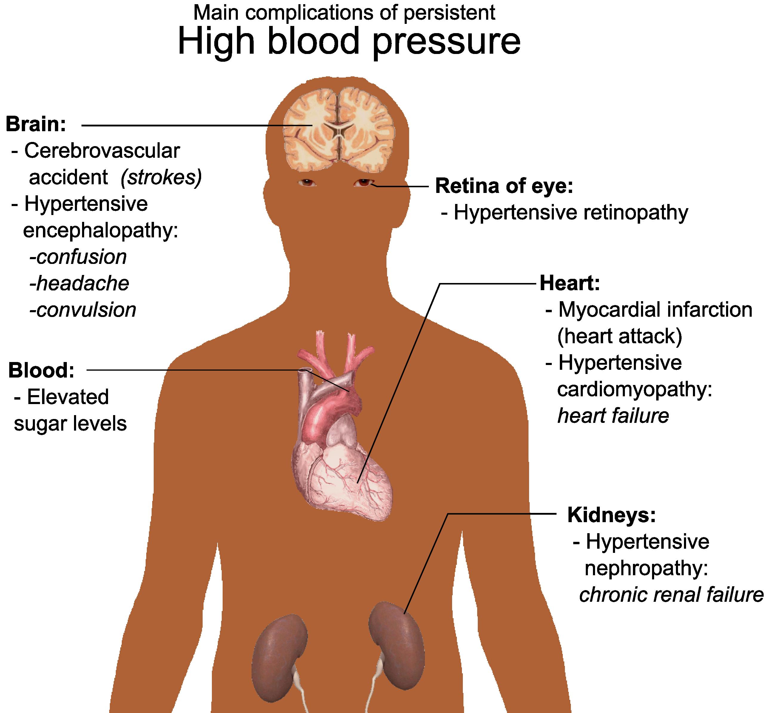 High blood pressure, what should I do