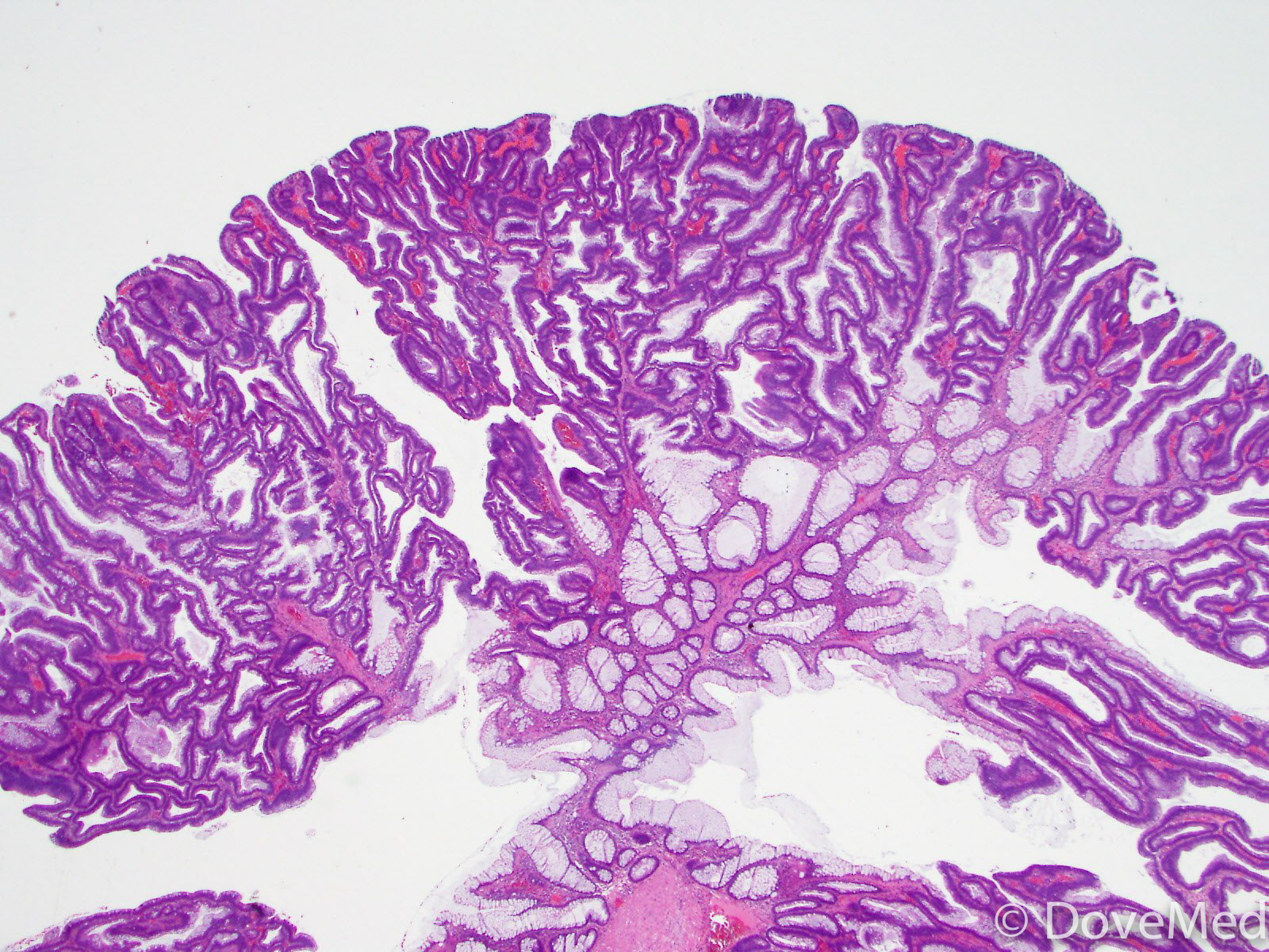 Tubular Adenoma Of The Colon