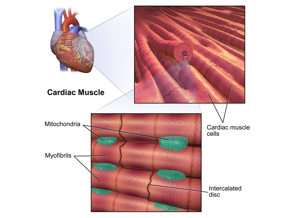 Cardiac Cell Therapy For Heart Failure Caused By Muscular Dystrophy