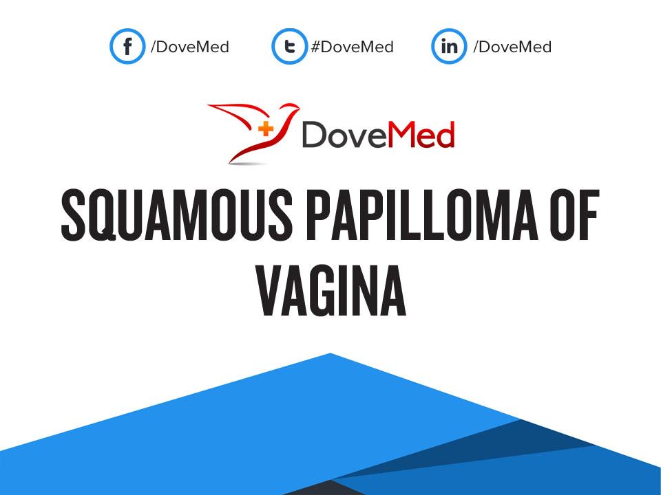 Vulvar papillomatosis kezelése, Vestibularis papillomatosis - Pattanás October