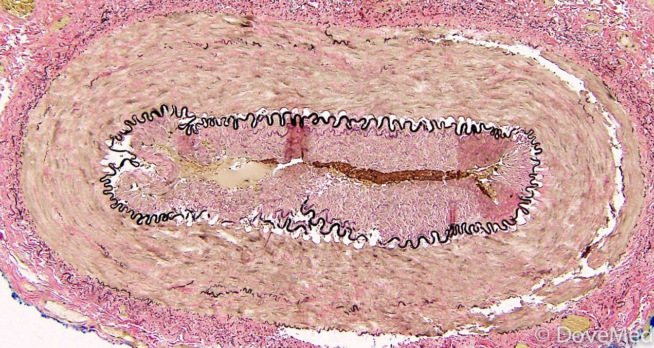 Temporal artery biopsy post-op transsexual surgery