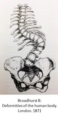 scoliosis drawing